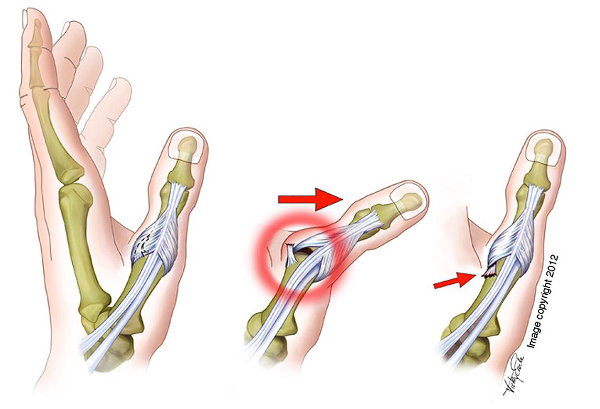 Anatomy Of Golf Swing Anatomical Overlays Golf Swing